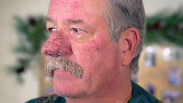 Homem recorre a especialista para mudar nariz que 'assusta', VEJA VÍDEO