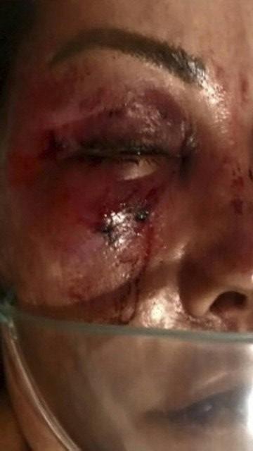 xelaine2.jpg.pagespeed.ic .vMfDcmfgIA - VIOLÊNCIA SEM RAZÃO: homem espanca mulher por quase quatro horas e é preso em flagrante - VEJA VÍDEO