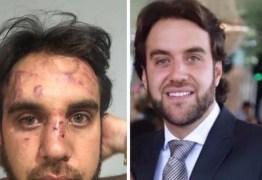 CONFUSÃO E BAIXARIA: Empresário é espancado durante festa de casamento do filho de Rômulo Gouveia