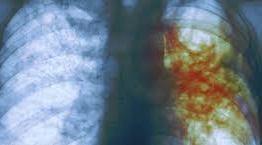 Tuberculose atinge 3,5 paraibanos por dia e doença pode afetar outras áreas além de pulmão