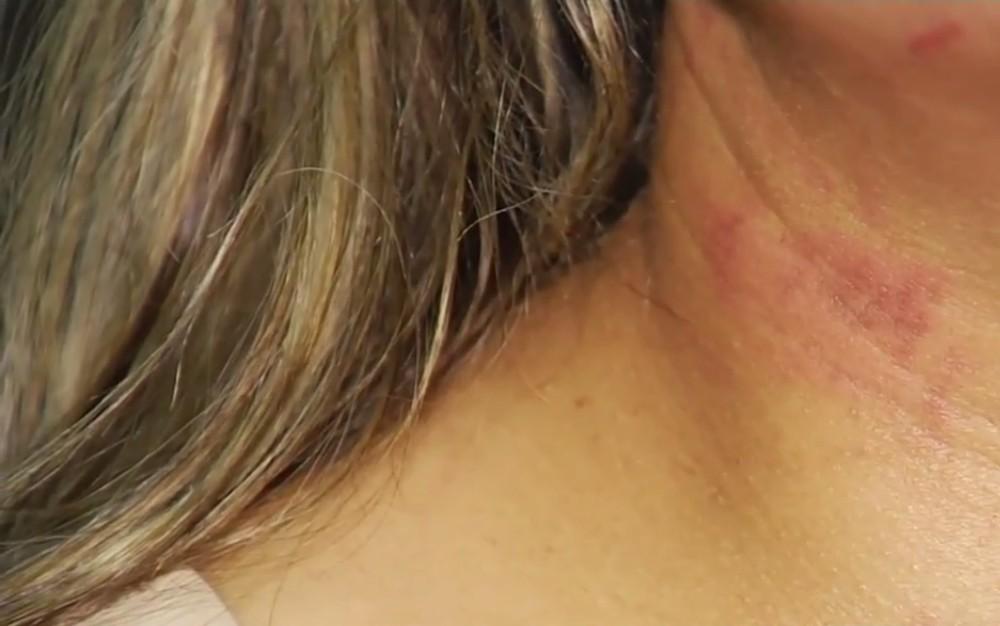 vitima estrangulada 05 03 19 - Mulher relata ter se fingido de morta para que ex parasse de agredi-la