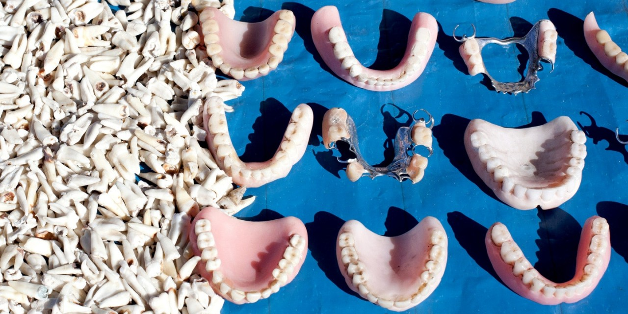 dentaduras - A DESIGUALDADE NO BRASIL É MEDIDA PELOS DENTES: ricos vão ao dentista e pobres sentem dor - Por Rosana Pinheiro-Machado