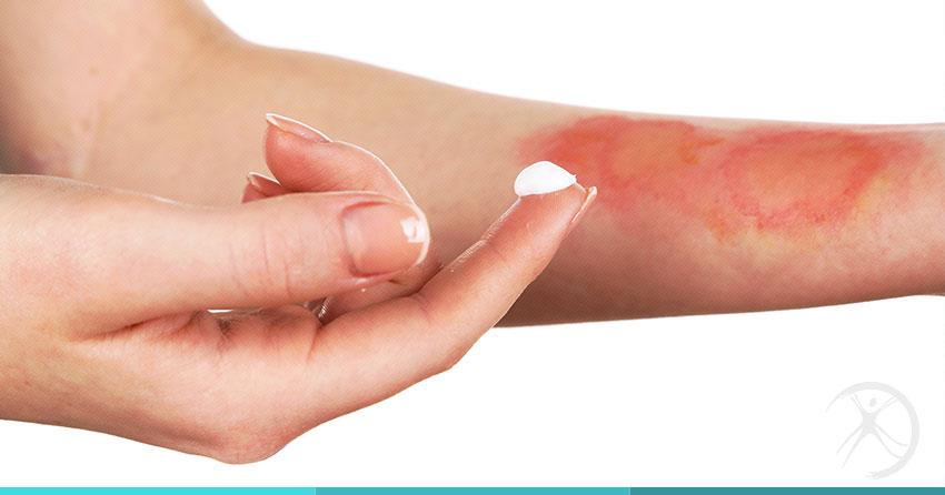 queimaduras cirurgia plastica reparadora dr fernando rodrigues bh - Substâncias inadequadas em queimaduras podem agravar o dano causado à pele, afirma dermatologista