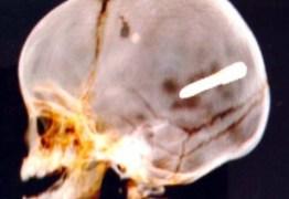 Bebê de 10 meses morre após ter crânio perfurado por prego