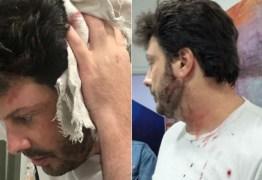 'PÉSSIMA NOITE': Danilo Gentili é agredido durante entrevista e sai sangrando da gravação – VEJA VÍDEO