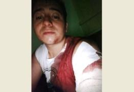 POR DIVERGÊNCIAS POLÍTICAS: Radialista leva facada do próprio pai após briga em bar no Sertão paraibano