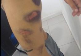 CABELOS RASPADOS E FEZES DE ANIMAL: Homem tortura ex namorada por cinco horas e manda vídeos das agressões para família da vítima