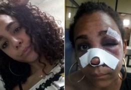 Homem agride e quebra nariz de ex-companheira com martelo