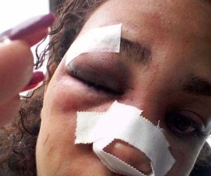 1 caxias3 12832394 1 e1566943430531 - Ex que espancou mulher com martelo é detido, confessa crime, mas é liberado