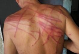 Família de rapaz esquizofrênico acusa PM de torturar jovem; entenda