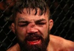 Americano fica com nariz desfigurado em derrota para brasileiro no UFC