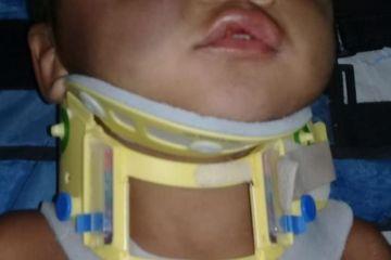 crianca - Mãe e padrasto são suspeitos de agredir criança de 2 anos