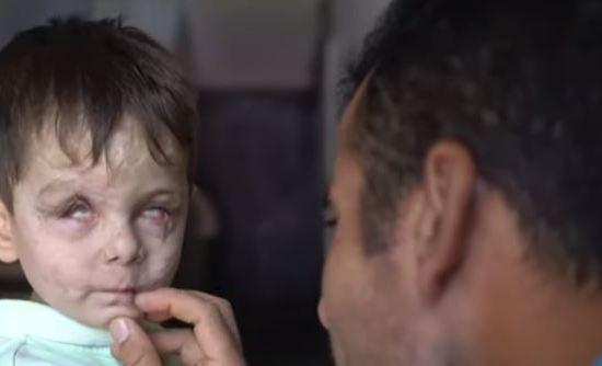 Guerra da Síria: o rosto de um menino que traduz a tragédia