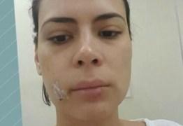 Apresentadora da Rede Globo leva 20 pontos no rosto após ser atacada por um cão