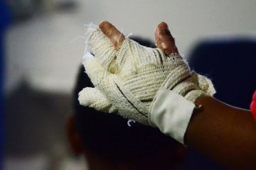 queimadura no sao joao divulgacao - Mulher tem 70% do corpo queimado após jogar álcool em fogão em João Pessoa