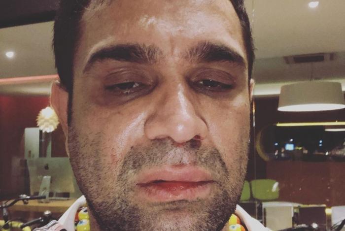 1 0 13834492 - Humorista é agredido após fazer show: 'homofobia e covardia'