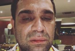 Humorista é agredido após fazer show: 'homofobia e covardia'