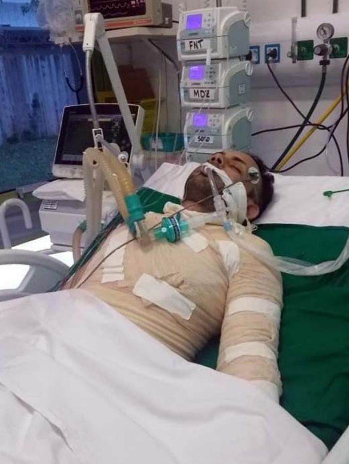 1 luan 14036596 - Auxiliar de cozinha paraibano morre após ter 40% do corpo queimado pela ex-namorada