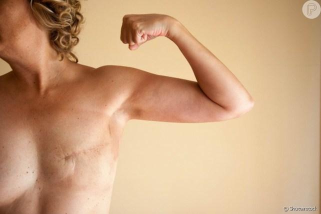 2805128 depois da mastectomia a cicatriz costum 950x0 3 - OUTUBRO ROSA: Mais de 70% dos maridos abandonam as mulheres diagnosticadas com câncer de mama - OUÇA