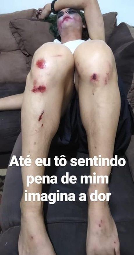 machucados 460x876 - 'APANHEI POR 40 MINUTOS DE UMAS 12 PESSOAS': Homem que se vestiu de Coringa para evento de games em São Paulo acusa seguranças de tortura - IMAGENS FORTES