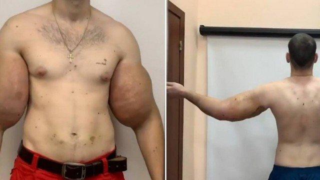 'Popeye' russo tem 1,5 quilo de 'músculo morto' removido de braço