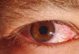 Homem descobre caso raro de sífilis nos olhos após ir ao médico por conta de dor de cabeça