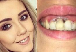 Jovem fica com queimadura na gengiva após tratamento 'barato' para clarear os dentes