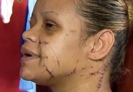 33 PERFURAÇÕES E MAIS DE 100 PONTOS: Mulher é esfaqueada por vizinho que não aceitava 'barulho de criança'