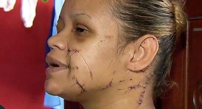 mulher e golpeada por faca por dono de casa - 33 PERFURAÇÕES E MAIS DE 100 PONTOS: Mulher é esfaqueada por vizinho que não aceitava 'barulho de criança'