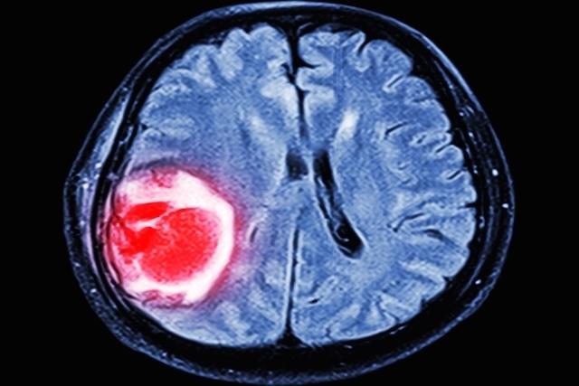 glioblastoma multiforme 25598 l - Cientistas usam partes do Ebola para tratar câncer no cérebro