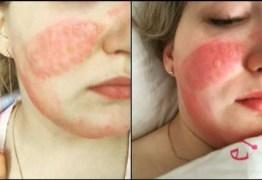 Enfermeira sofre queimadura ao reutilizar máscara desinfetada com alvejante