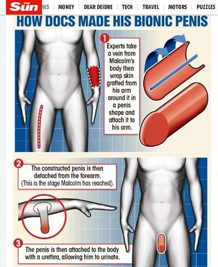 blog penis 2 - Homem que perdeu o pênis tem novo órgão construído em antebraço, e com mais 5cm