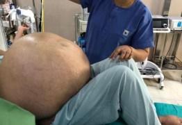 Tumor ovariano de 50 kg é removido de mulher em cirurgia; veja