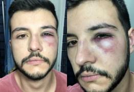 Jornalista da Record leva soco ao reagir a assalto