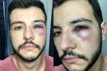9de3m9rfmh0cjuoib7ff3fl8y 1 - Jornalista da Record leva soco ao reagir a assalto