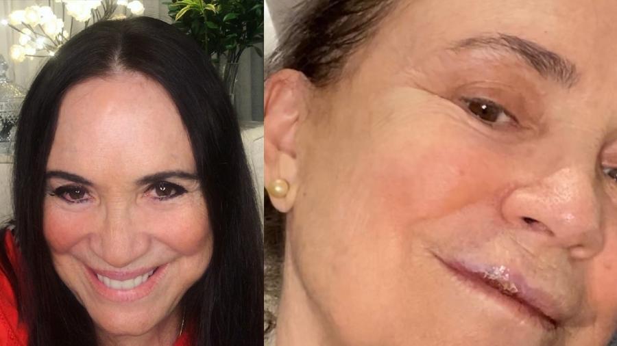 regina duarte compartilhou detalhes do acidente nas redes sociais 1598791921396 v2 900x506 1 - Regina Duarte sofre queda e quebra três dentes: 'Celular pode ser uma arma'