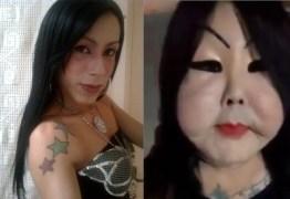 Trans chamada de Fofão consegue médico para tirar silicone industrial do rosto