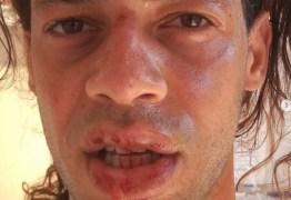 HOMOFOBIA: irmão de repórter da Rede Globo é agredido por sete homens e denuncia homofobia