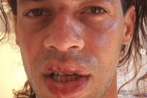 1 guilherme azevedo 19671928 300x201 - HOMOFOBIA: irmão de repórter da Rede Globo é agredido por sete homens e denuncia homofobia