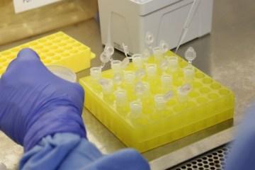 diagnostico laboratorial de casos suspeitos do novo coronavirus 2801209411 1 - Complexo Industrial de Biotecnologia em Saúde: Brasil terá maior fábrica de vacinas da América Latina