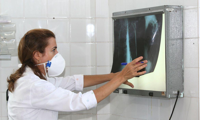 tuberculose - Fiocruz vai testar eficácia da vacina contra tuberculose para covid-19