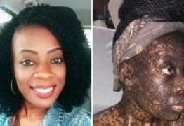 Mulher fica com rosto irreconhecível após tomar remédio de ouvido