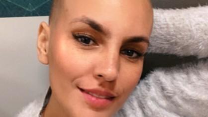 ana paula rubini reproducao instagram e1602150207274 418x235 1 - Influencer que tratava câncer morre semanas depois de contrair Covid-19
