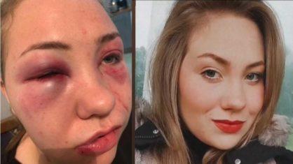 julia 418x235 1 - Na Irlanda, brasileira denuncia que namorado a espancou por ciúmes