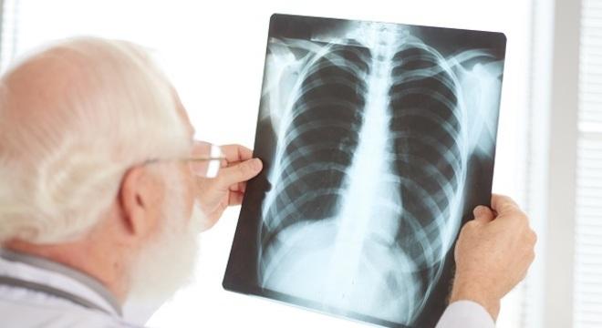 medico olhando raio x 13052020124315756 - Pneumonia pode ser provocada por bactéria, vírus e fungo e atinge 900 mil pessoas todos os anos no Brasil