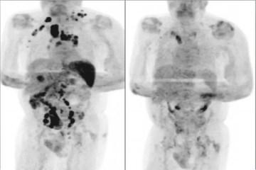 linfoma covid 19 - Homem tem redução de câncer em estágio avançado após contrair Covid-19