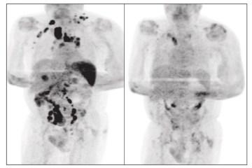 linfoma covid - Em caso raríssimo, paciente com câncer tem remissão da doença após pegar Covid; entenda