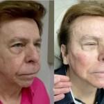 nelson rubens - OKAY, OKAY! Aos 83 anos, Nelson Rubens faz harmonização facial e mostra antes e depois