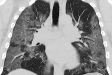 Paciente transplantada morre de Covid-19 após receber pulmões infectados