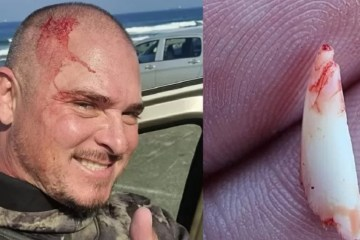Pescador subaquático remove dente de tubarão da cabeça após ataque – VEJA VÍDEO